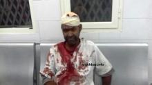 أحد المصابين في النزاع مساء أمس بعيد تلقيه العلاج في مستشفى الشيخ زايد بنواكشوط